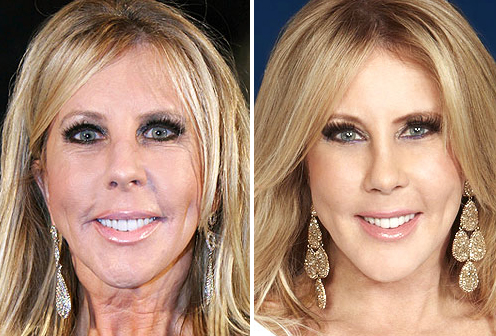 vicki-gunvalson-before-after-real-housewives-oc